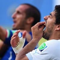 לואיס סוארס מאורוגואי לאחר שנשך את ג'ורג'יו קייליני מאיטליה במשחק שהתקיים ב-24 ביוני,  2014