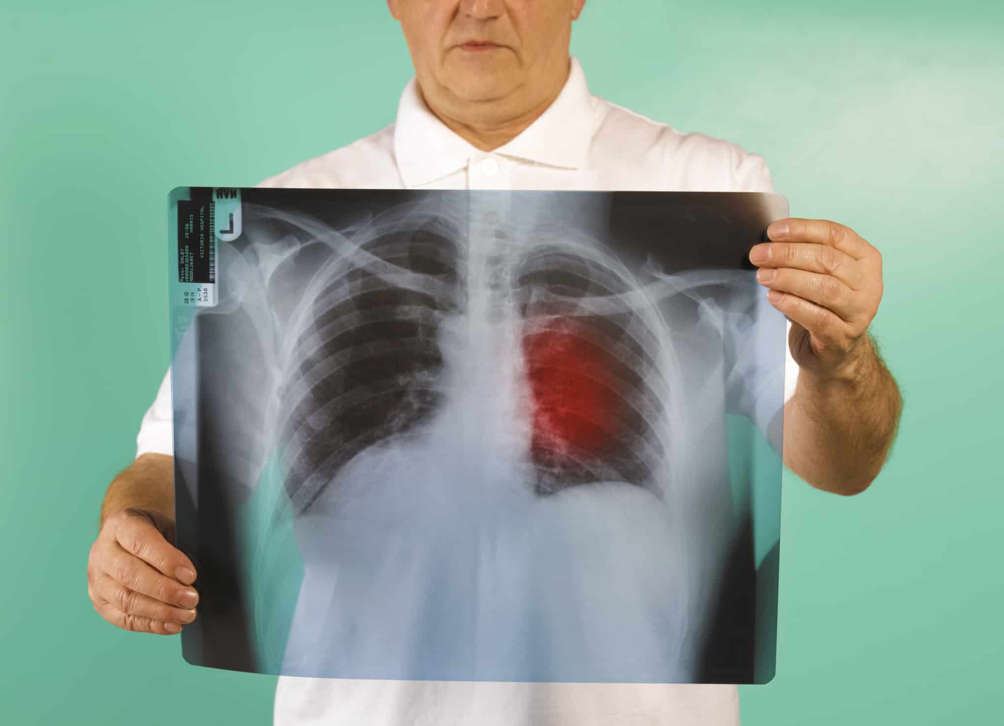 איבחון סרטן ריאות. רופאים בכירים לועגים לרעיון המרכזי של מרכז המחקר ווטסון. צילום: גטי-אימג'