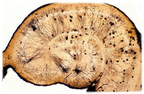 חיתוך רוחב של ההיפוקמפוס במוח