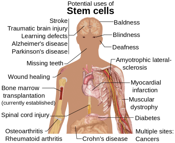 טיפול בתאי גזע עשוי לסייע בריפוי מחלות אלה