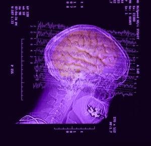רנטגן מוח