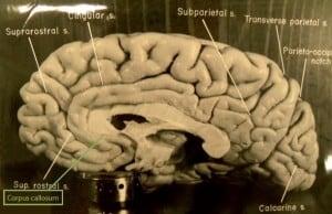 המוח של איינשטיין