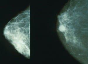 מימין: ממגורמה לא תקינה. משמאל: ממוגרמה תקינה