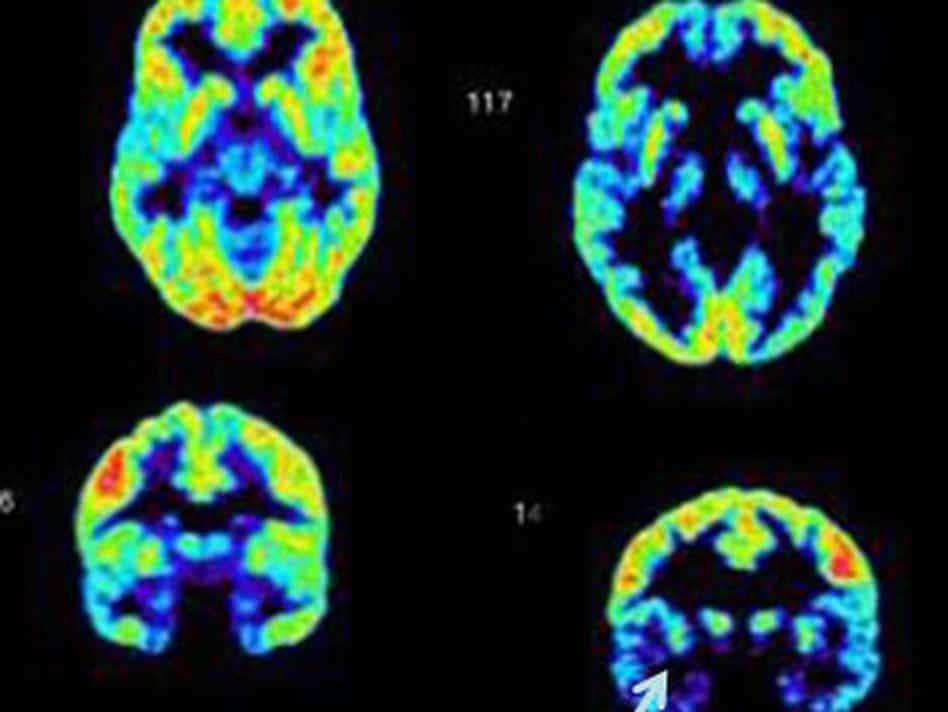 מוח פסיכופת