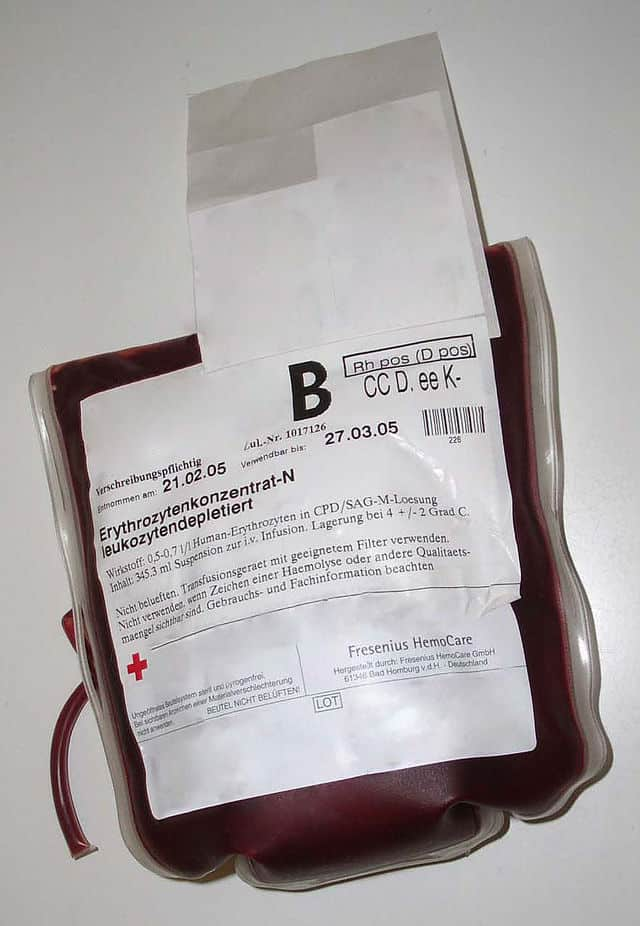 עירוי של סוג דם B. צילום: Midnightsnack