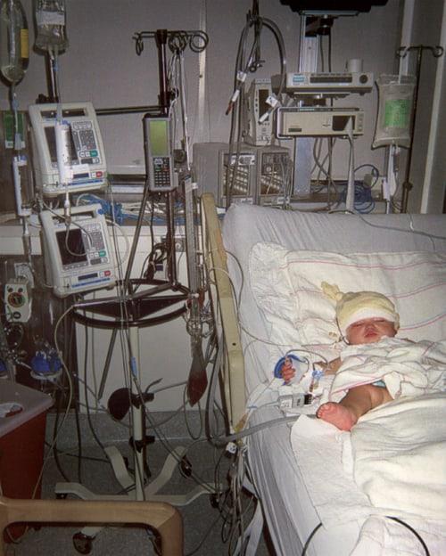 ויליאם בבית החולים לאחר הניתוח שבו כרתו את האונה הימנית במוחו. צילום באדיבות המשפחה