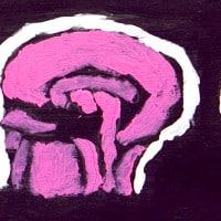 מוח נאון