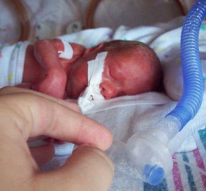 תינוקת שנולדה בשבוע 26 ושישה ימים, במשקל 990 גרם. צילום: סי ג׳איוז