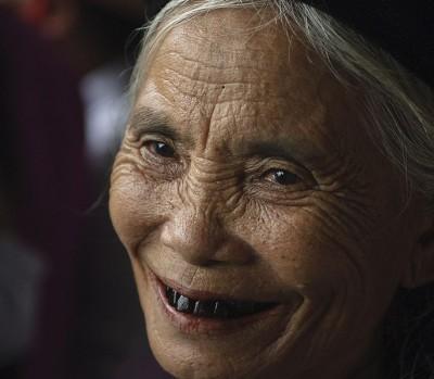 אישה וייטנאמית עם שיניים מושחרות