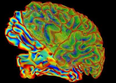 סריקת מוח, fMRI, SUMA