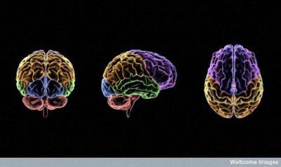 סריקות מוח, אזורים במוח