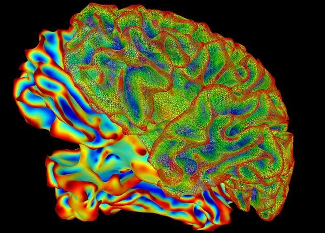 fMRI, מוח, סריקה