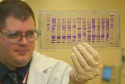 """דנ""""א, פרופיל גנטי, מכס, גבולות"""