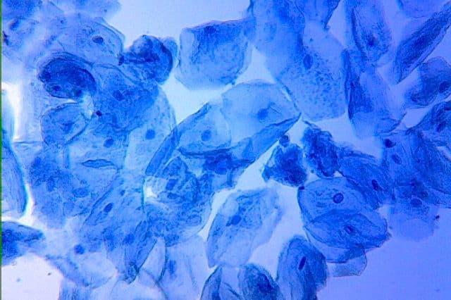 כחול מתילן, תאי לחי