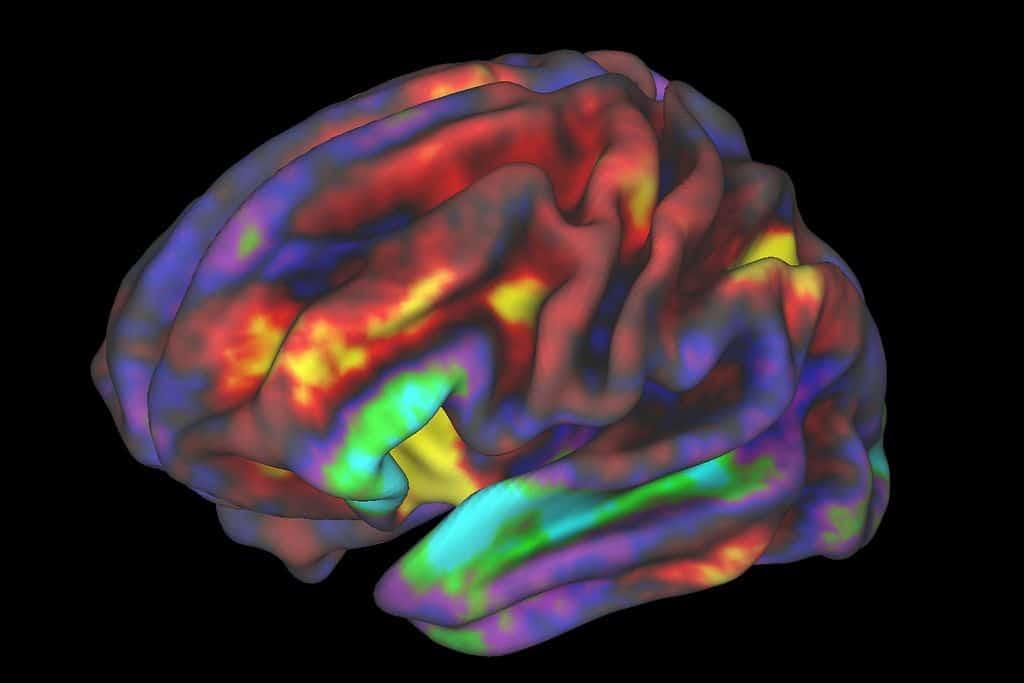 FMRI, NIH, זיכרון עבודה, דימות