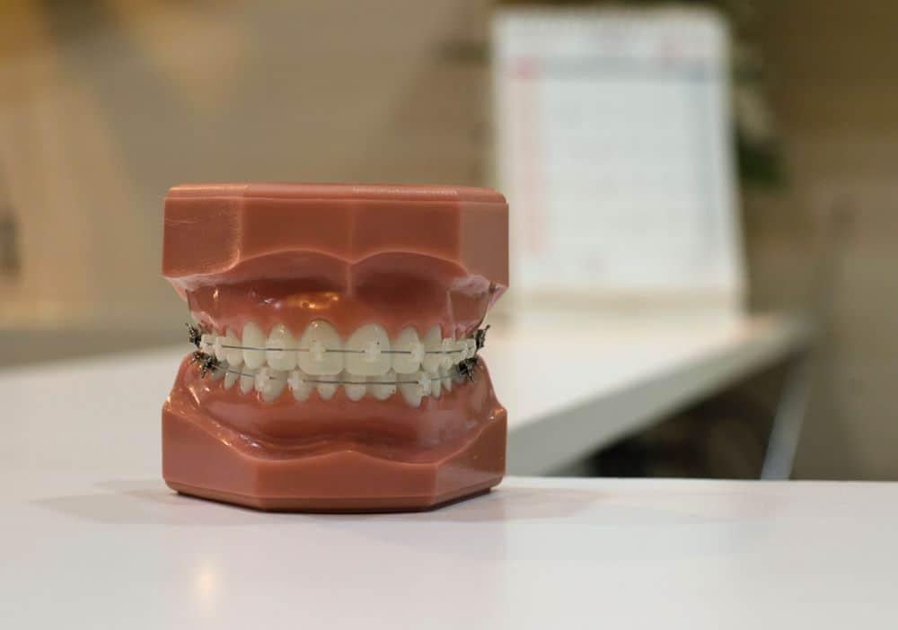 קוביות שיניים