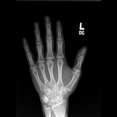 כך יד, רנטגן, שמאל, יד שמאל